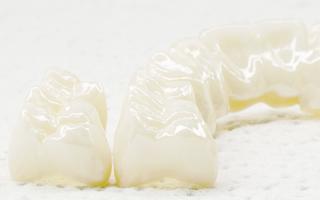 補綴歯科について